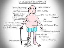 cushing-syndrome-1